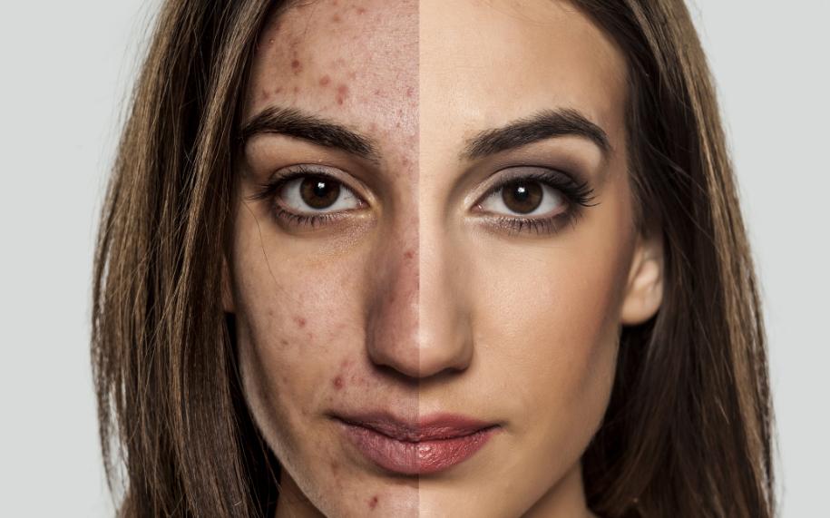 Akne, bumser og hudorme - Hvordan kommer du dem til livs?